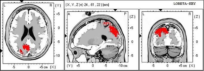Neurofeedback sLORETA qEEG