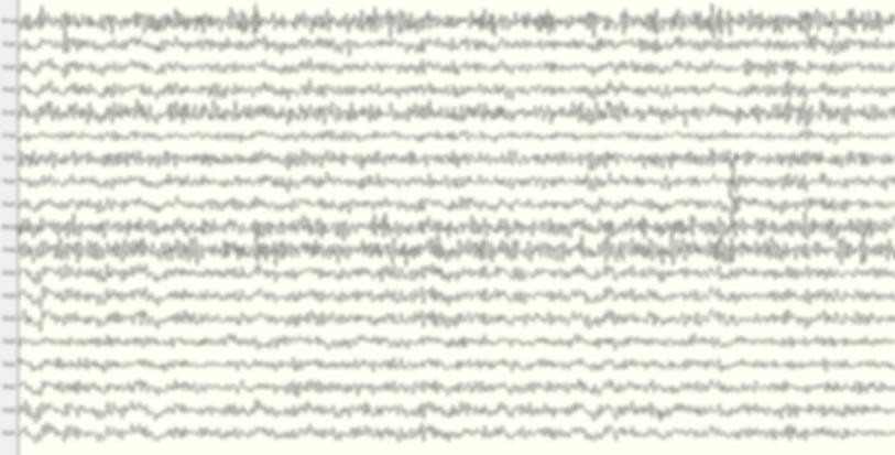Neurofeedback EEG EEG-biofeedback