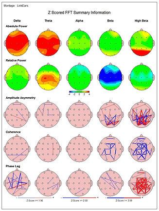 Neurofeedback EEG-biofeedback qEEG
