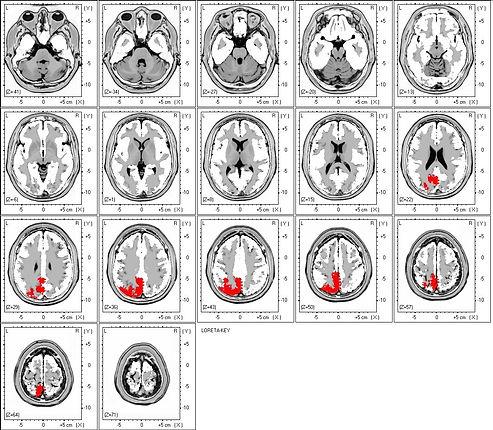 Neurofeedback EEG-biofeedback sLORETA qEEG