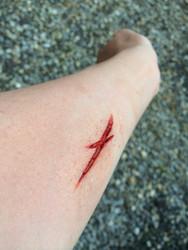 slice in arm
