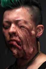Tumor Face