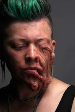 Tumor Face 2