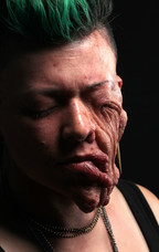 Tumor Face 3