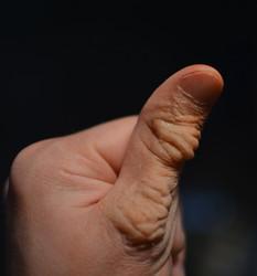 Wrinkly Thumb