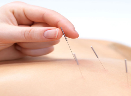 Acupuncture is effective in treating 28 illness / conditions