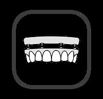 All on 4 fixed bridge / denture