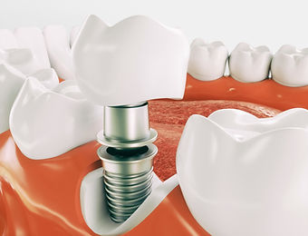 dental-implant-21.jpg