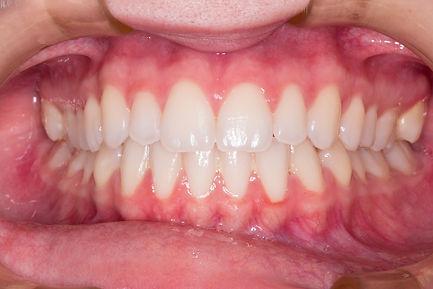teeth-2339168.jpg