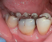 After Periodontal Therapy