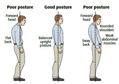 Different-Types-of-Posture.jpg