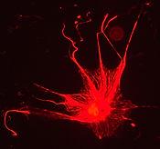 hSVZ astrocyte.jpg