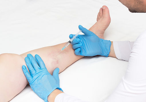 Doctor performs sclerotherapy for varico
