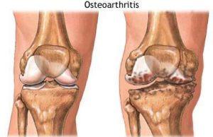 Desenho comparando um joelho com a cartilagem articular normal (esquerda) e um com artrose (direita).