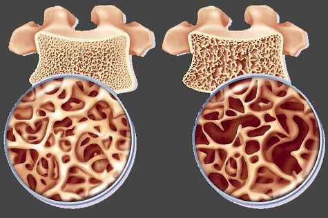 fratura coluna OSTI curitiba osteoporose.jpg