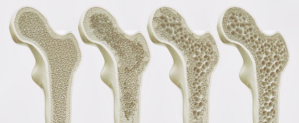 Figura mostrando a evolução da osteoporose no fêmur. A imagem da esquerda representa um osso normal e a da direita um osso osteoporótico.