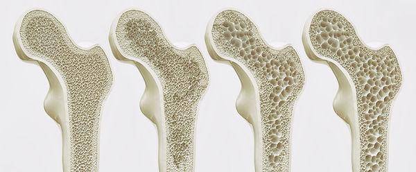 osteoporose osti curitiba tratamento