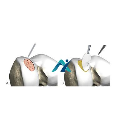 A. Realização de pequenos orifícios no leito da lesão condral (Microfraturas) B. Microfraturas com cobertura de membrana de colágeno.