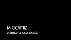 MI CICATRIZ: ESA BELLEZA DE TODOS LOS DÍAS.