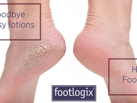 Get your feet spring ready - Are your feet ready to go bare?!