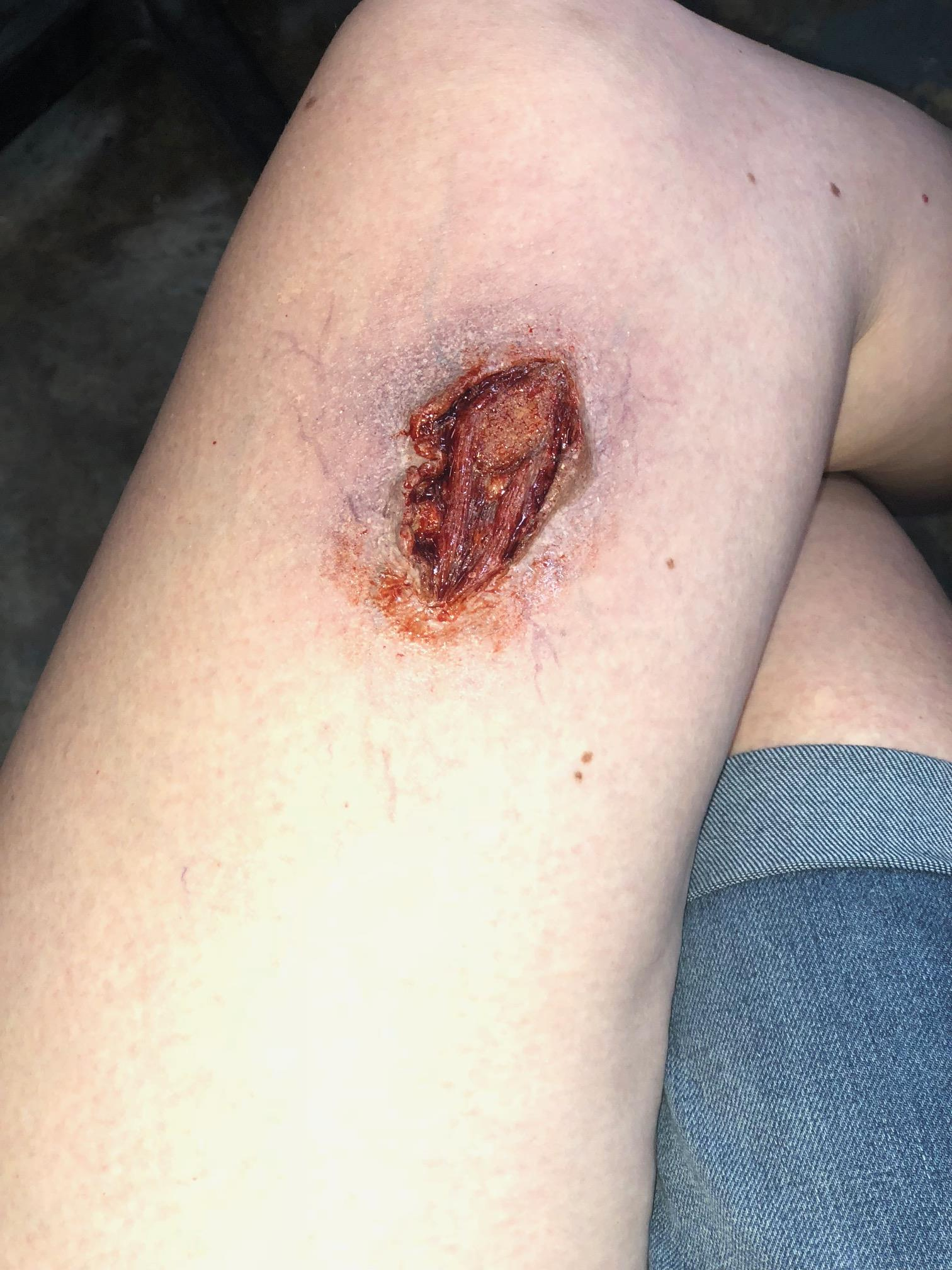 Open Wound SFX