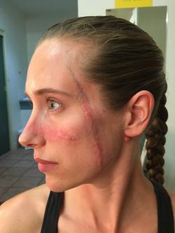 Facial Scars
