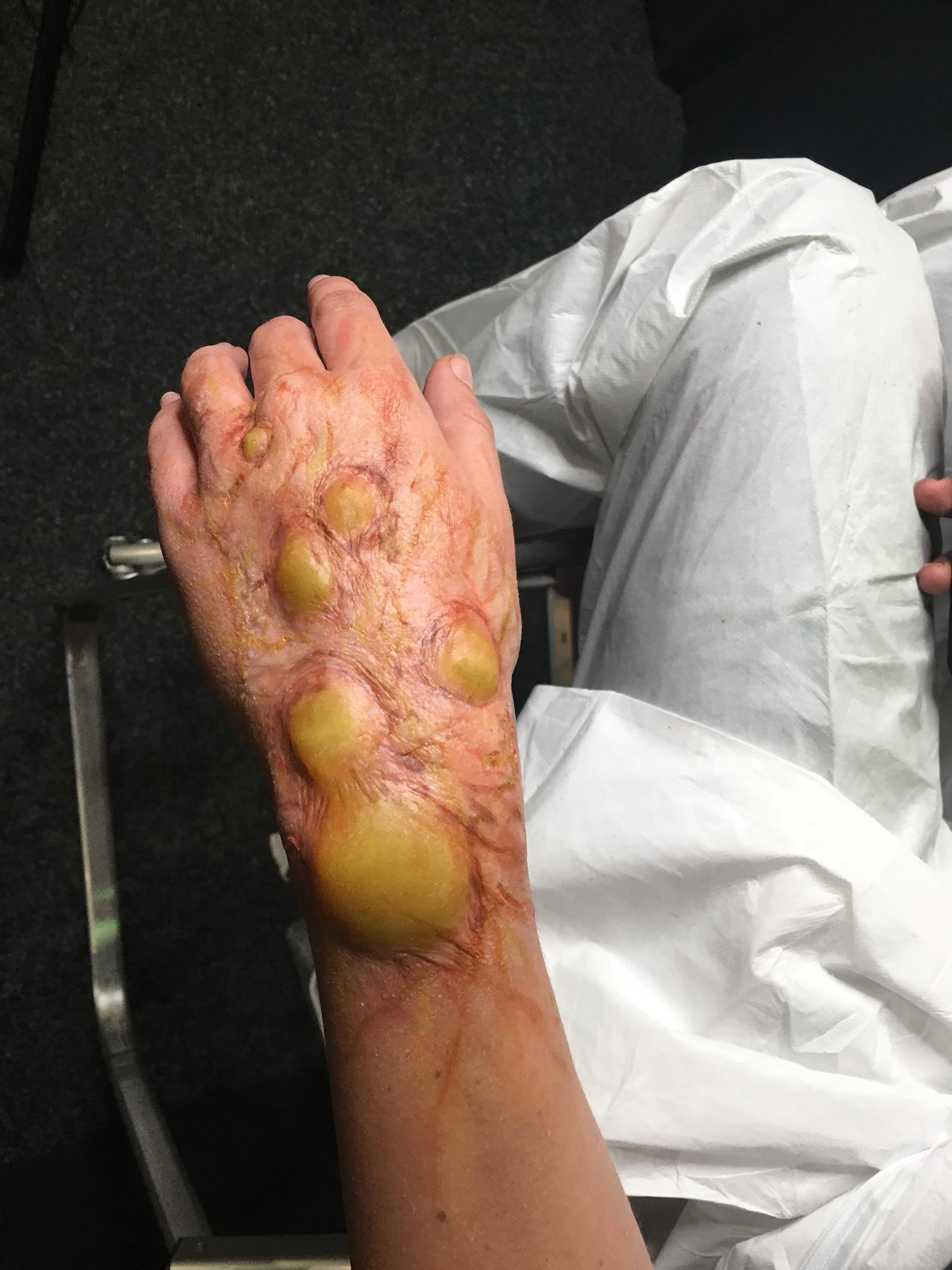 "'Infected"" Prosthetic"