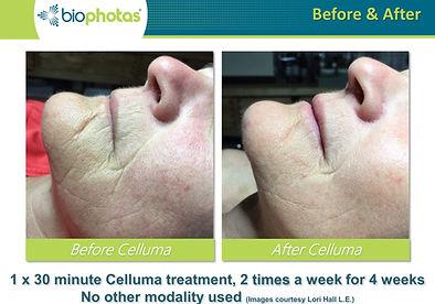 Celluma_Before-After.14.JPG