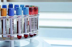 blood-samples-centrifuge-machine.jpg