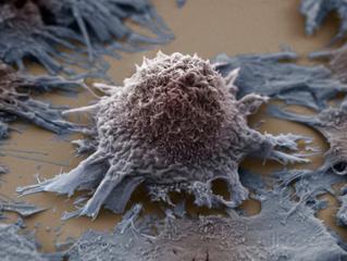El papel de la fusión ALK-EML4 en el cáncer de pulmón