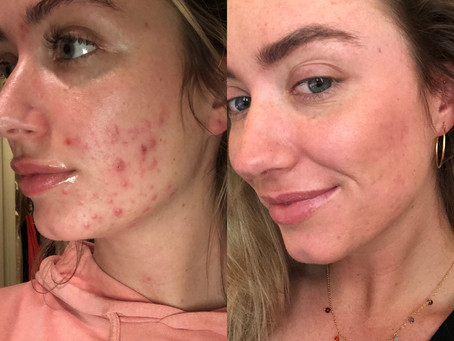 My Acne Journey- Part 1