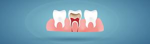 Endodontics .png