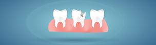 Cavities .png