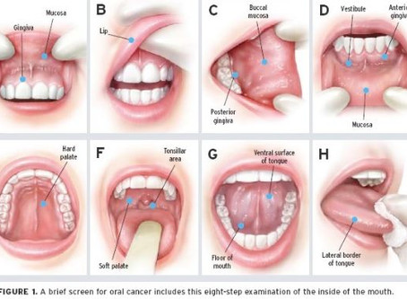 How Safe is Oral Jewelry?