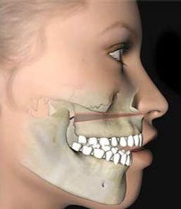 mckenzie-orthodontics-corrective-jaw-sur