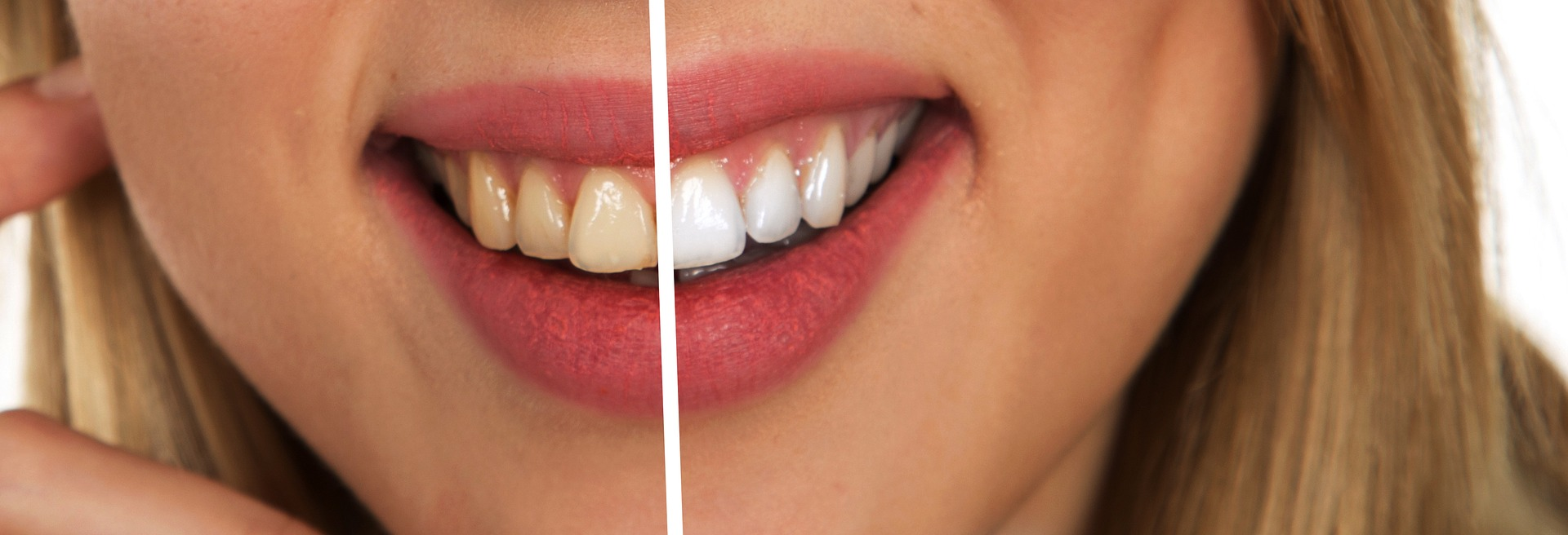 Before and After Dental Clinic