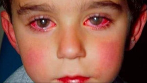 Burn Injury To The Eyes: One Little Boy Lost His Sight Because Of This Toy That You Probably Have At
