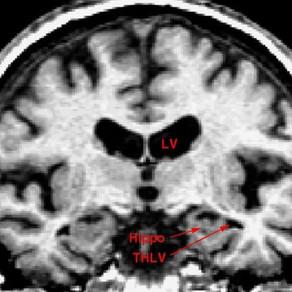 La enfermedad de Alzheimer podría ser causada por una infección de las encías según un nuevo estudio