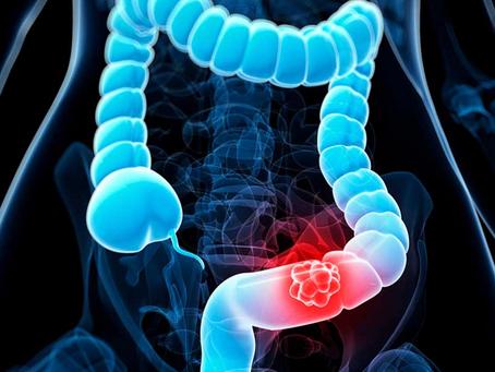 O câncer de intestino vem aumentando dramaticamente entre os jovens