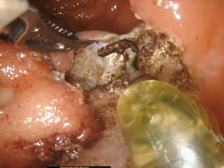 Cirurgia Robótica Transanal