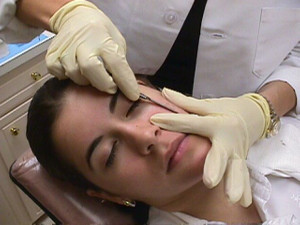 Dermaplaning!  What is it and what are the benefits?