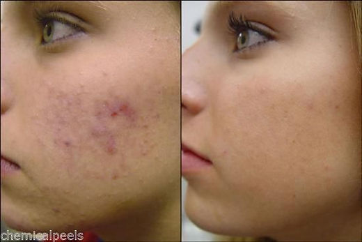 Clear your skin with chemical peels at Simply Mia's, Seattle