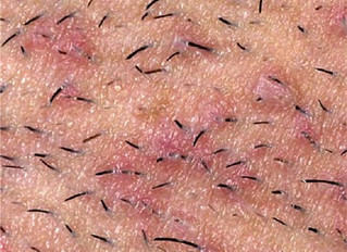 Ingrown Hairs and How to Prevent Them