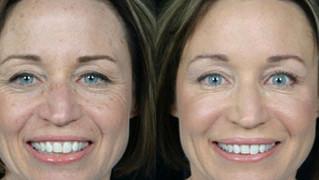 Repair Sun Damage with an Effective Chemical Facial Peel…