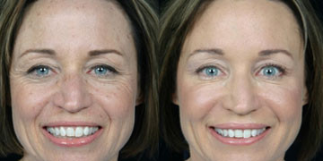 Chemical Peels can reduce the damage caused by the sun and so much more