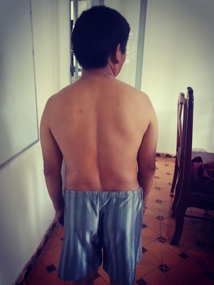 Nghi can tội phá rừng Ma Seo Xì được kiểm tra trước sự chứng kiến của công an và chụp ảnh xác nhận tình trạng thân thể không có vết thương nào trước khi bàn giao để tạm giam chờ điều tra.
