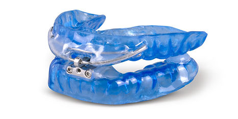 Oral dreamTap Sleep Apnea device