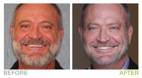 before-after-rick.jpg