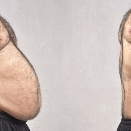 Por fim, o componente dos exercícios (entre 15% e 30% do seu metabolismo).