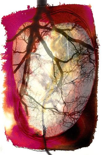 Cœur traversé 1 Encre et photmontage numerique1